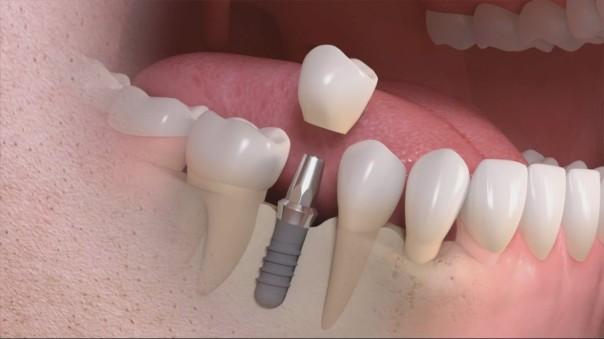 impianti-dentali-Termoli-Cordisco